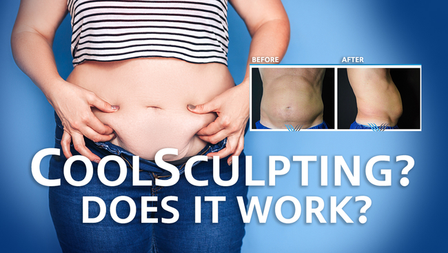 Want a great summer body? Find out more about Coolsculpting