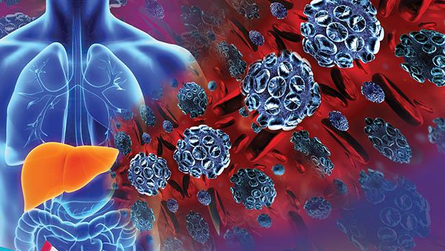 Hepatitis, the ABC's